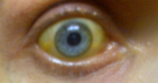 Bilirubin_Eye