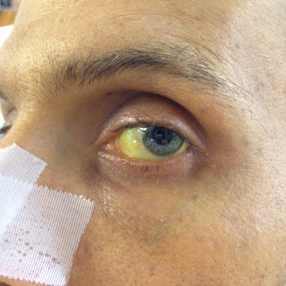 Skin tone considerably less yellow, eye color is still indicative of high bilirubin.