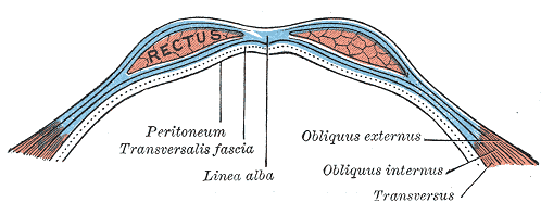 In this illustration, the line that is pointing to the linea alba is where my hernia is.