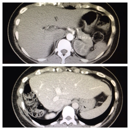 Top photo is my liver from November of 2013. Bottom photo is from April 24th.
